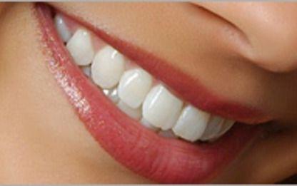 секреты красивых зубов